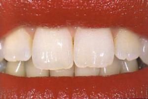 טיפולי שיניים, אורתודונטיה, יישור שיניים, איך תשמור על השיניים שלך בריאות