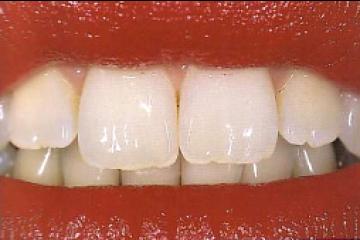 טיפולי שיניים, אורתודונטיה, יישור שיניים