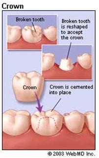 כתר לשיניים